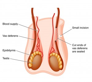 vasectomy-procedure-before-after-information-01